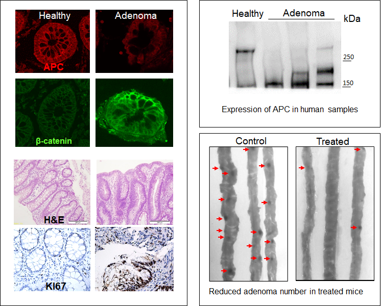 Arbesfeld Lab Apc In Early Colorectal Cancer Stages Colonic Adenomas